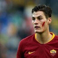 Serie A, i giocatori col volto dipinto di rosso contro la violenza sulle donne