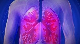 Polmone, da sola l'immunoterapia in prima linea non basta