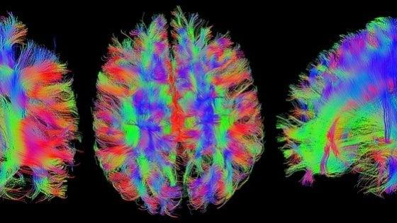 Tumore al cervello, quanto conta la differenza di genere