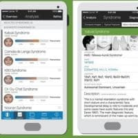 Sperimentata la app che riconosce le malattie genetiche rare dalle foto dei volti