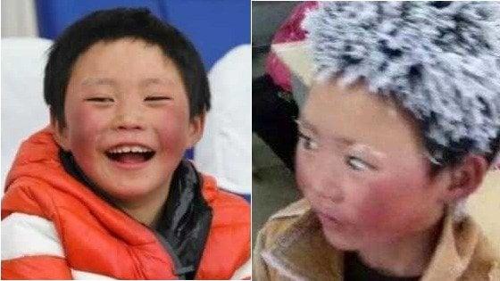 'Ice Boy' torna a sorridere: la nuova vita del bambino con i capelli di ghiaccio