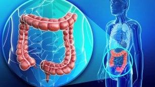 Tumore del colon-retto metastatico, con la 'tripletta' aumenta la sopravvivenza
