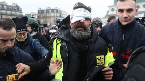 Gilet gialli, uno dei leader ferito negli scontri con la polizia: «Perderò l`occhio»