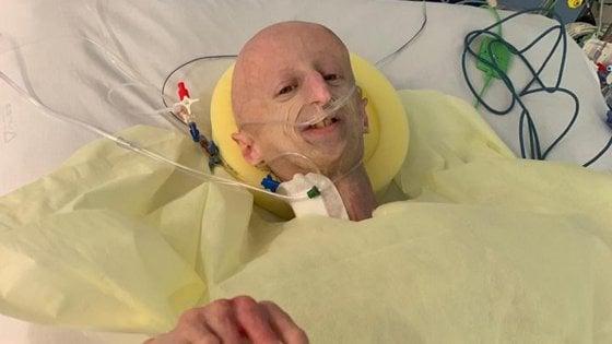 Sammy Basso operato: primo intervento al cuore per invecchiamento precoce