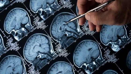 Alzheimer, allo studio la pillola della memoria