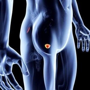 Tumore della prostata, oltre 4 anni di vita in più e senza dolore