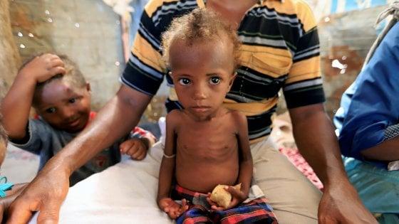 Missile contro l'ospedale di Save the Children in Yemen uccide 4 bambini