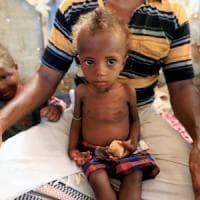 Yemen, muore un bambino al giorno e 1 milione e mezzo è costretto a fuggire: il rapporto...