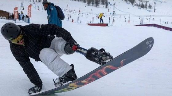 """Alessandro: """"Con la mia protesi high tech e lo snowboard posso sognare le Paralimpiadi"""""""