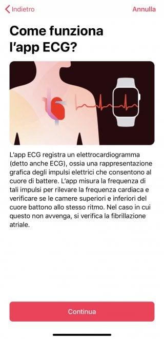 Apple Watch, ecco come funziona l'ECG