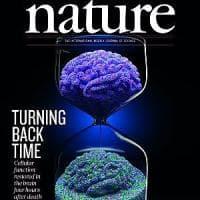 Neuroni riaccesi dopo la morte. Esperimento sui maiali usando sangue artificiale