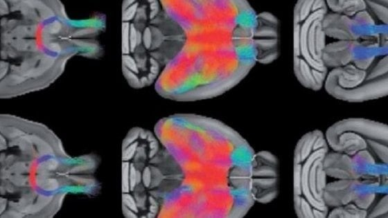 L'intelligenza artificiale scopre nuove mutazioni dell'autismo