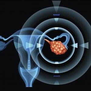 carcinoma prostatico resistente alla castrazione senza metastasi