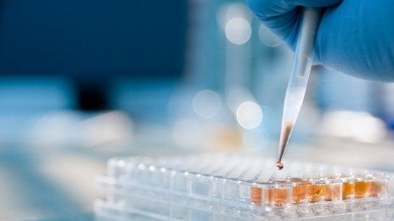 Terapia Car-T l'arma letale per i linfomi