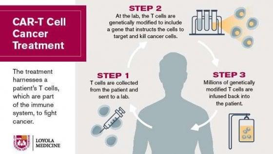 Car-T, come funziona la super terapia contro i tumori del sangue