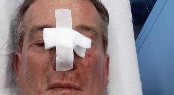 Cerca di allontanare nomadi, picchiato sindaco-sceriffo del Trevigiano