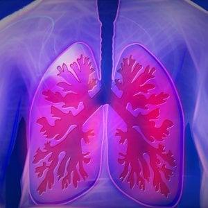 Polmone: i benefici dell'immunoterapia continuano anche dopo 5 anni