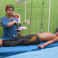 """""""Vive nel dolore"""". Corsa per curare Mohammed, il bimbo curdo ustionato dalle bombe turche"""