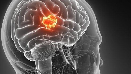 Il prelievo del sangue predice l'esito di un tumore aggressivo al cervello