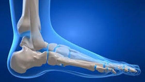 Caviglia ricostruita in 3D al Rizzoli, come è avvenuto l'intervento