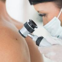 Melanoma: così cambia il trattamento dopo l'intervento chirurgico