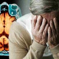 Chi si ammala di Alzheimer dimezza il rischio di un cancro e viceversa
