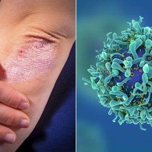 Psoriasi associata a maggior rischio di tumori