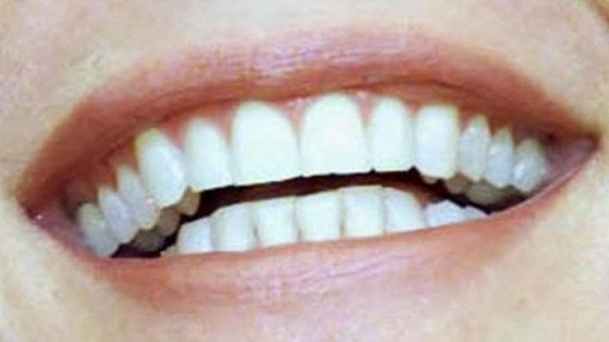 """La """"memoria"""" degli eventi significativi della nostra vita? E' nei denti"""