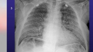 Cosa accade ai polmoni quando vengono colpiti dal Covid-19