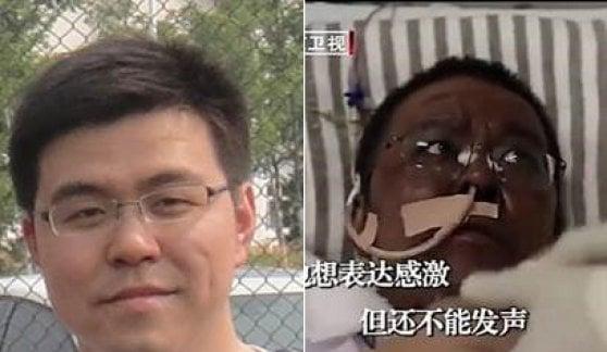 Due medici cinesi contagiati dal virus si risvegliano con la pelle scura