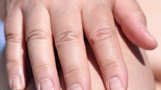 Che cosa saranno le macchie sulla pelle del paziente di Sansilvestro?