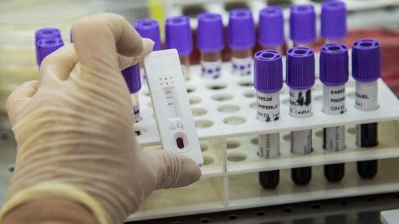 Coronavirus, anticorpo paziente guarito da Sars potrebbe essere efficace contro Covid