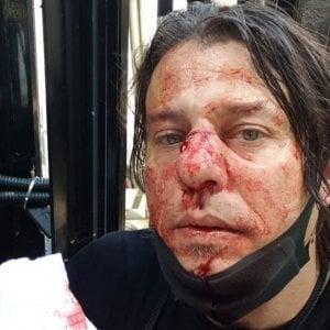 """Scontri Londra, il fotografo italiano aggredito: """"Così l'estrema destra ci ha picchiato in piazza"""""""