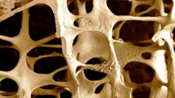 Ma che cosa c'entra la geochimica con l'osteoporosi?