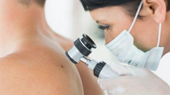 Tumori della pelle: raddoppiati in vent'anni soprattutto negli anziani
