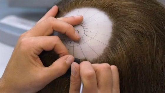 Una protesi ridà i capelli a chi li perde per la chemio