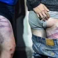"Bielorussia, le ong denunciano: ""Torture contro i manifestanti"". Tikhanovskaja : ""Basta..."