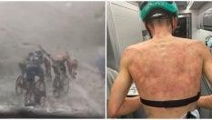La violenta grandinata lascia il segno sulla schiena dei ciclisti