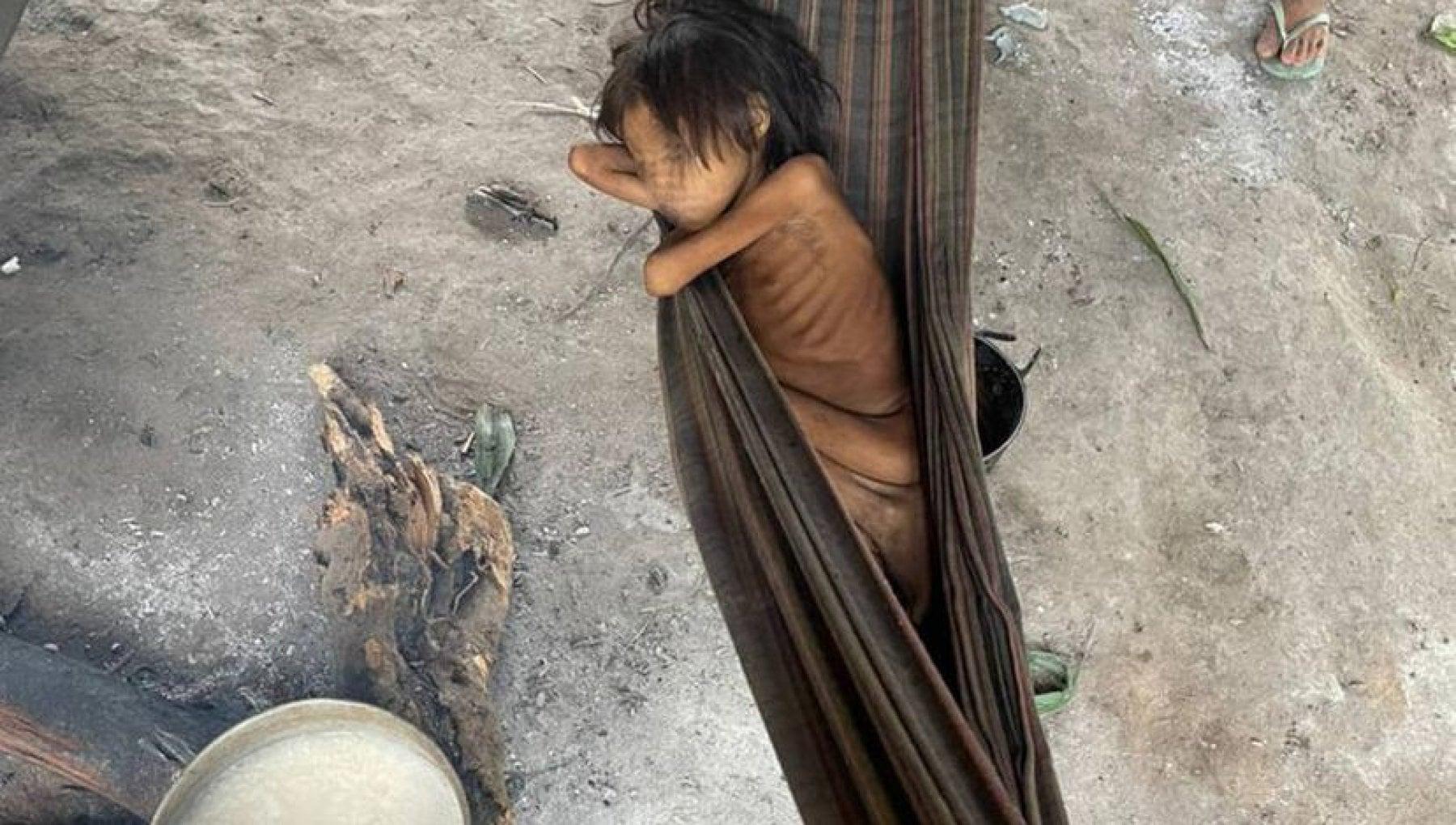 145347101 684f1862 4411 48b8 85f3 a421a3f5653a - Otto anni, 12,5 chili: la bambina simbolo della strage degli Yanomami