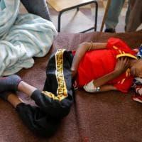 """Emergenza Etiopia: """"Nel Tigray, 33 mila bambini rischiano la morte per malnutrizione"""""""