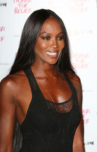 Troppe extension: Naomi perde i capelli - D - la Repubblica