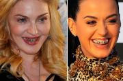 Katy Perry mette l'apparecchio ai denti. E copia Madonna