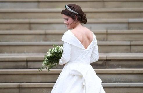 La scollatura dell 39 abito da sposa svela la cicatrice di for Sposa che corre