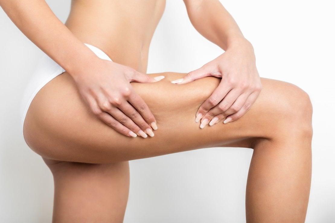 Cellulite: prodotti, rimedi e consigli mirati