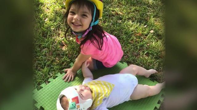 Bimbo affetto da plagiocefalia: tutta la famiglia indossa il casco per solidarietà