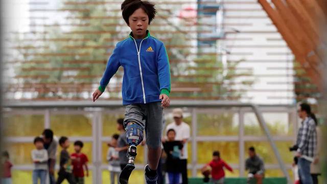 Il grande sogno del bimbo con una gamba sola: diventare un atleta paralimpico
