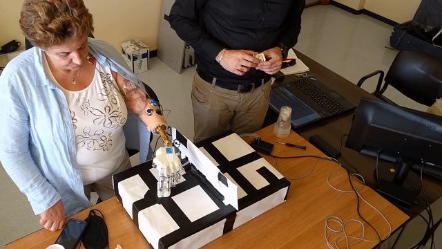 Mano bionica impiantata a una donna