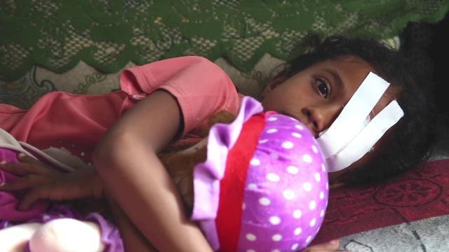 Petizione Save The Children contro le bombe italiane in Yemen: 6.500 bambini uccisi o feriti