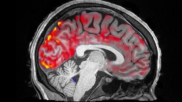 """Lo straordinario lavaggio del cervello che ogni notte """"resetta"""" la nostra mente"""